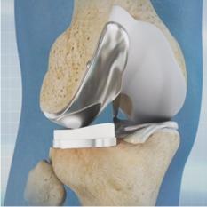 Unicompartmental Knee Replacement Saishree Pune